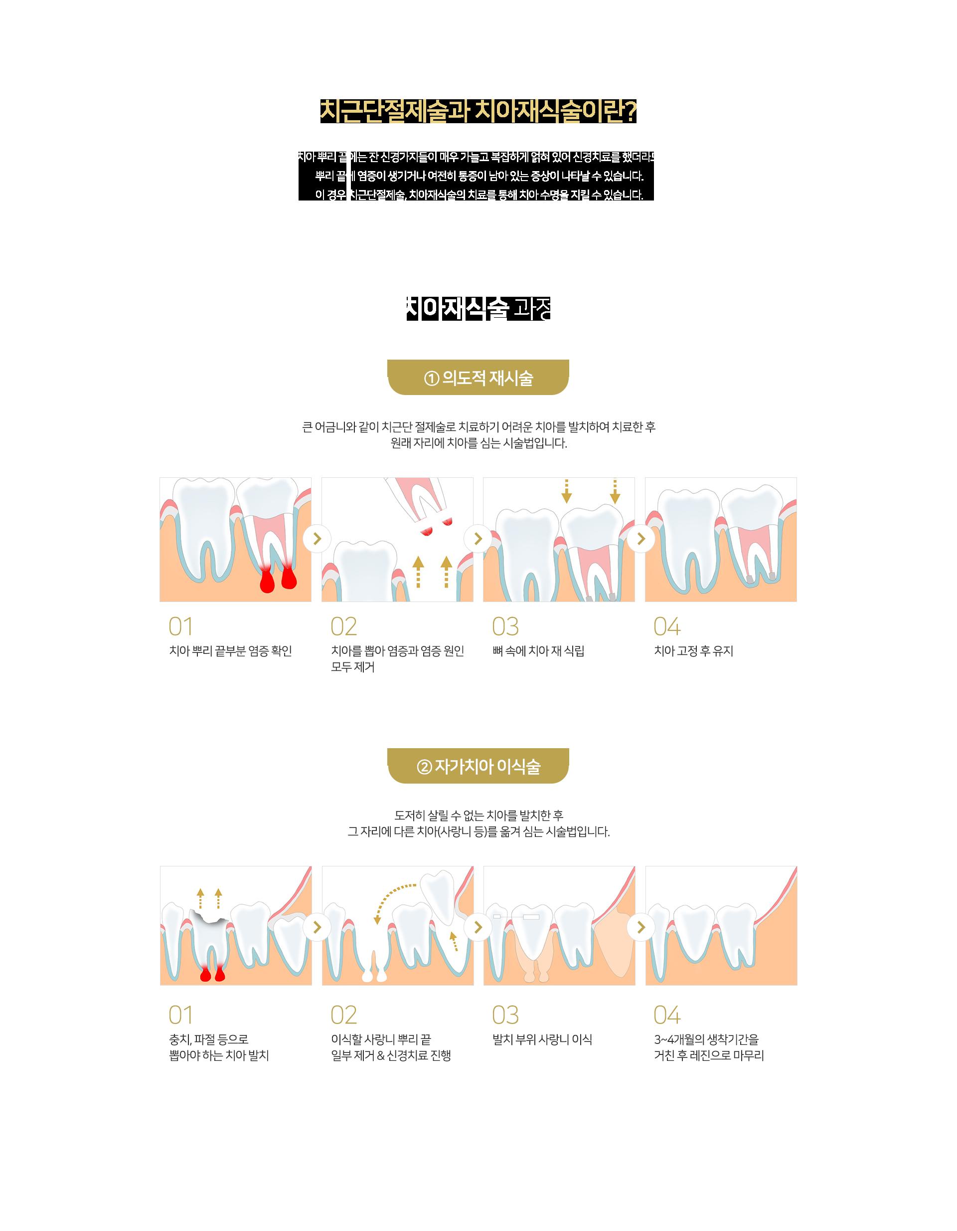 치근단절제술과 치아재식술이란? ① 의도적 재시술, ② 자가치아 이식술