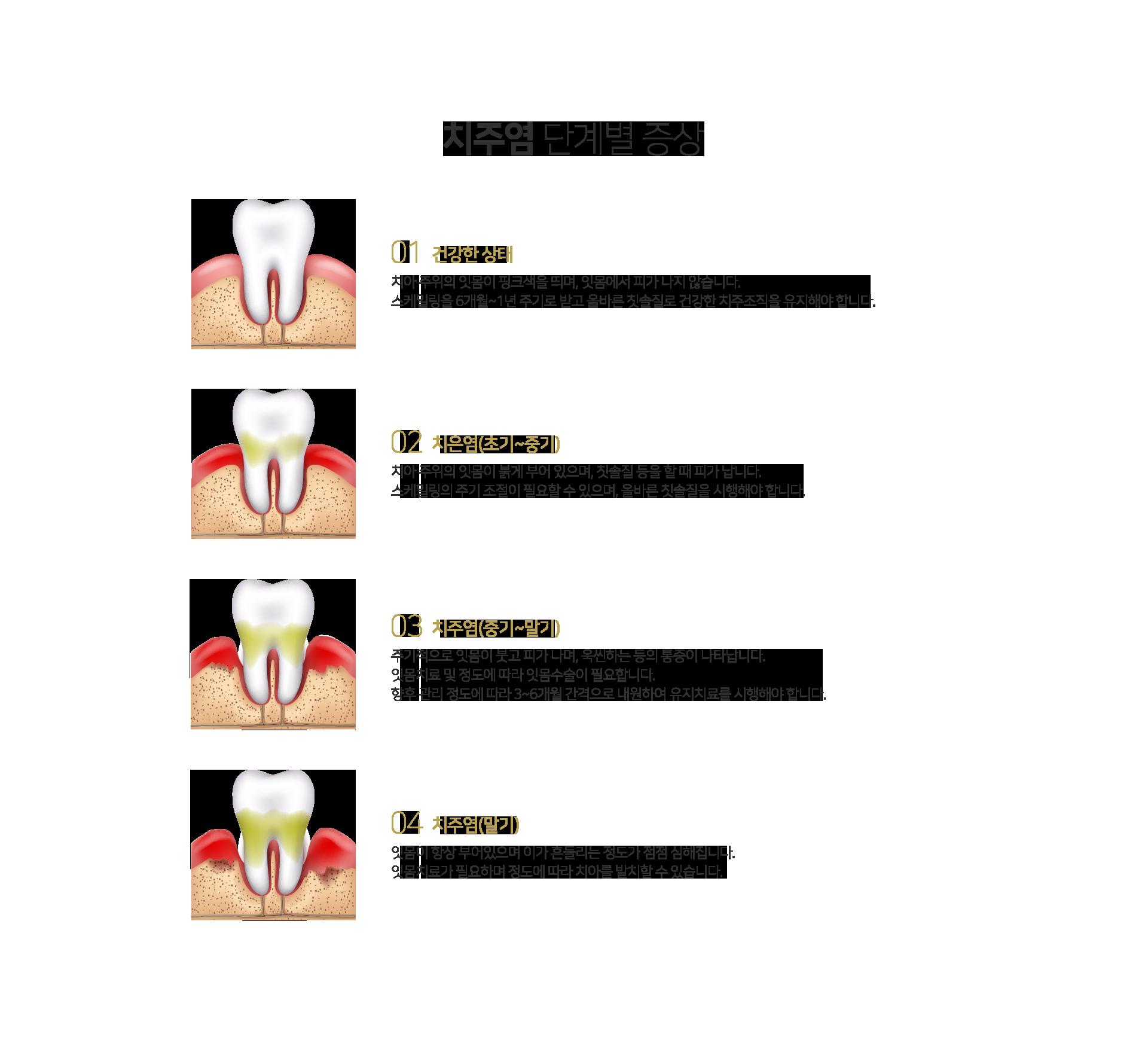 치주염 단계별 증상