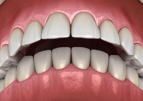 과밀한 치아