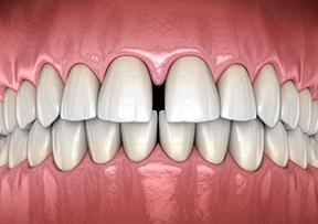 벌어진 치아