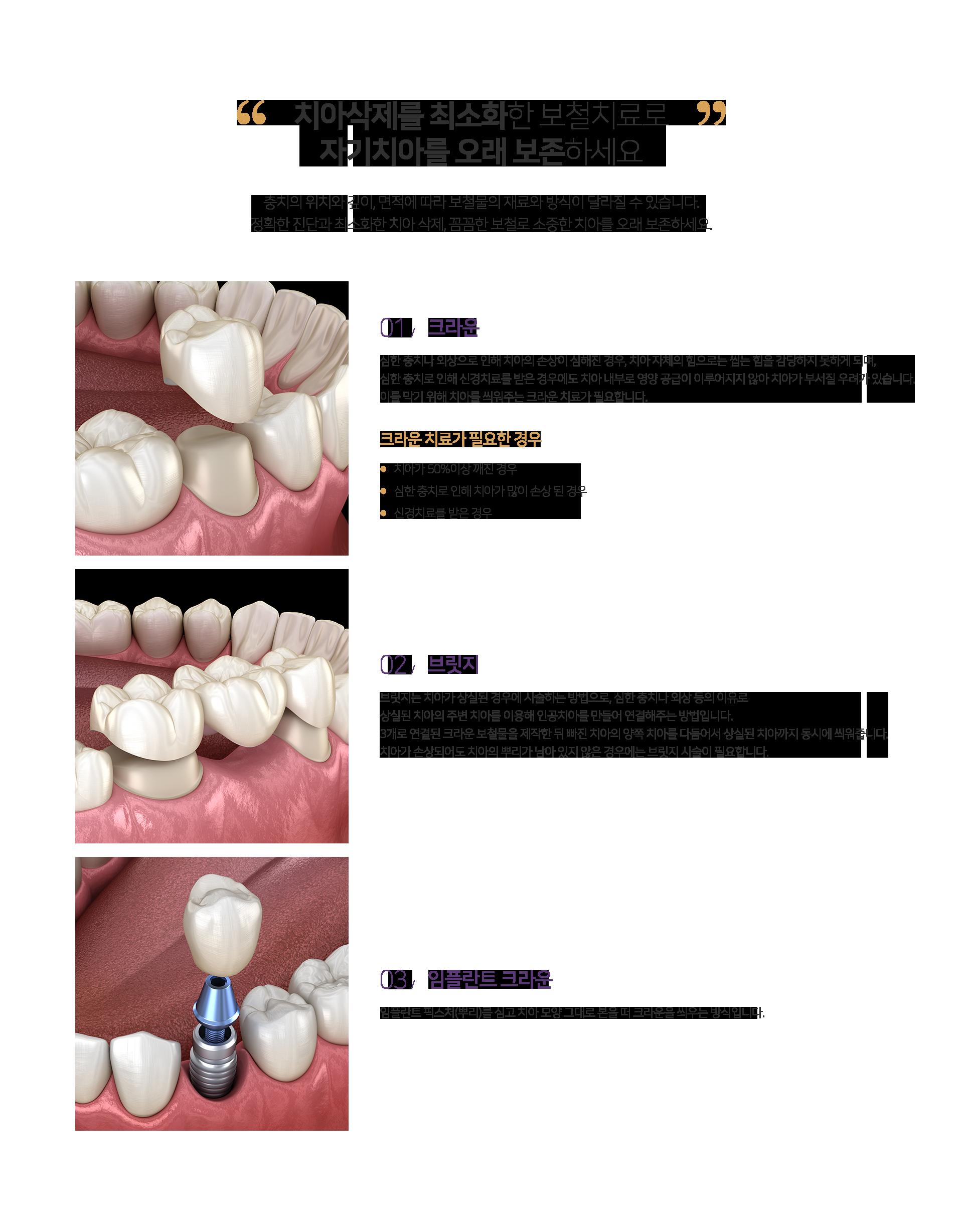 치아삭제를 최소화한 보철치료로 자기치아를 오래 보존하세요