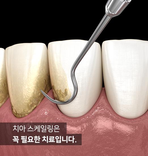 치아 스케일링은 꼭 필요한 치료입니다.